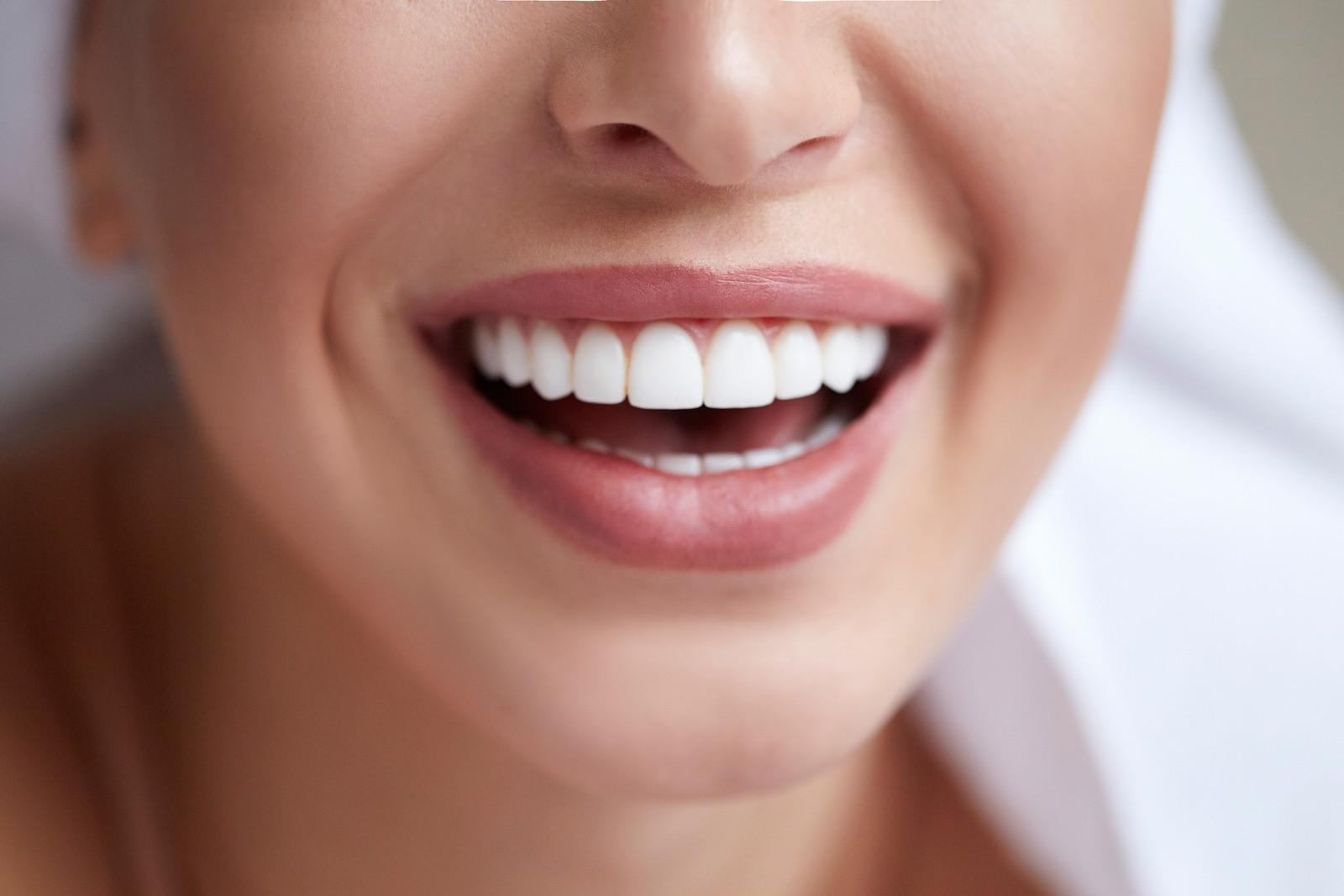 Veneers- Enhancing the Beauty of Your Smile